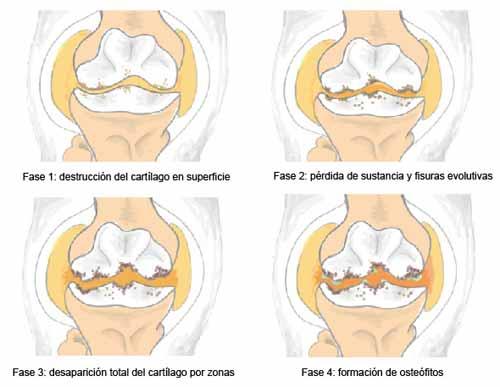 Cómo plantarle cara a la artrosis