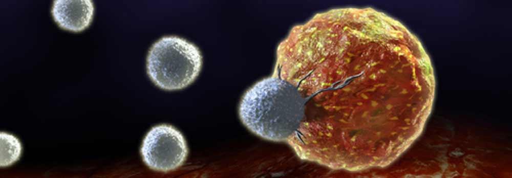 La Micro-Inmunoterapia como tratamiento complementario del cáncer