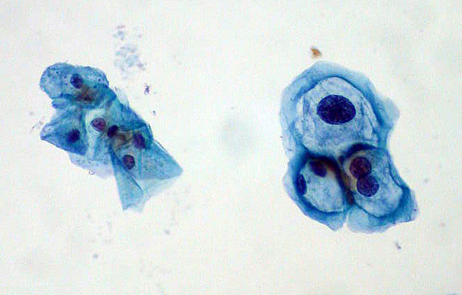 La Micro Inmunoterapia y el papilomavirus humano