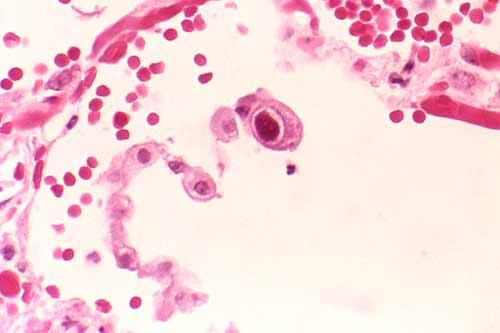 citomegalovirus-humano