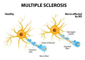 Virus de Epstein-Barr: ¿una posible implicación en la Esclerosis múltiple?
