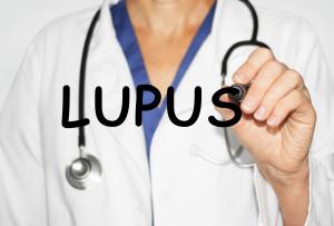 Lupus eritematosos sistémico e INF-1: Una relación potencialmente peligrosa