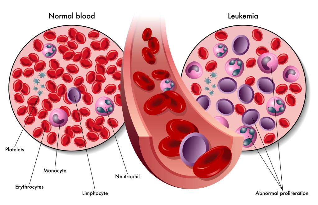 Leucemia y la respuesta inmunológica