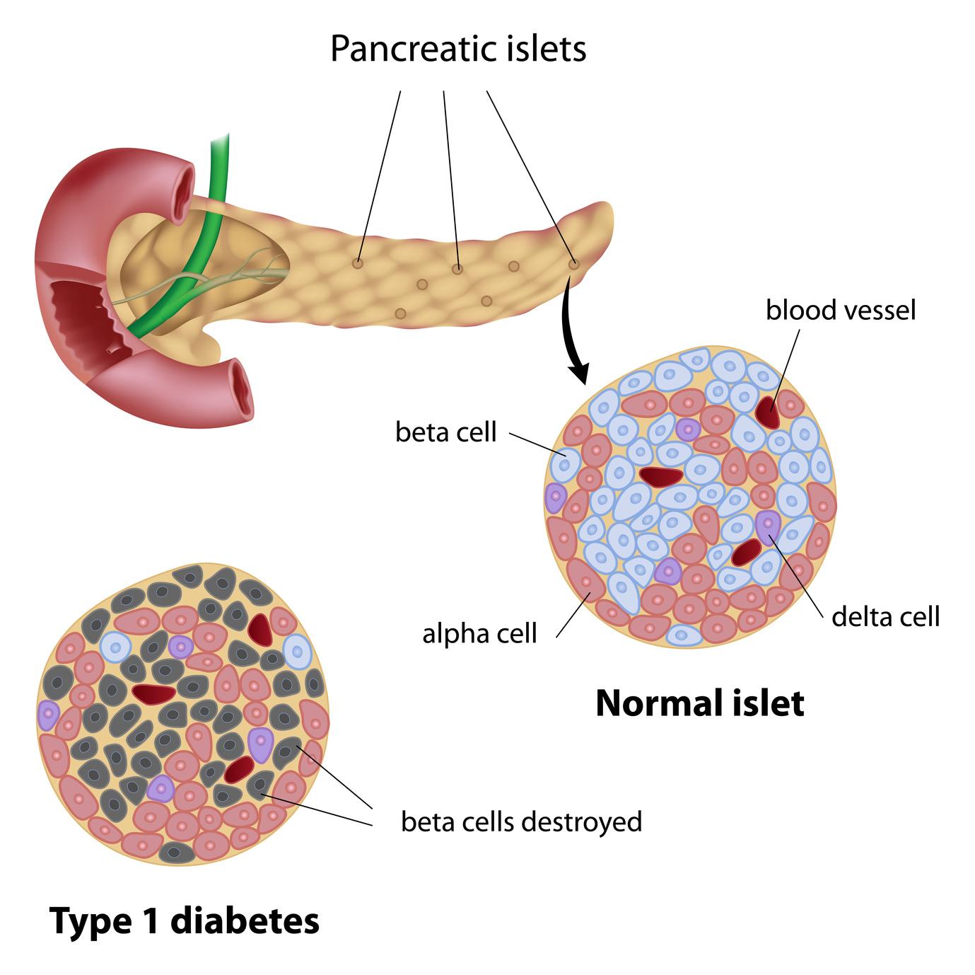 Diabetes tipo 1 | MiSistemaInmune